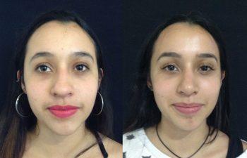 Rinoplastia mujer perfil frontal