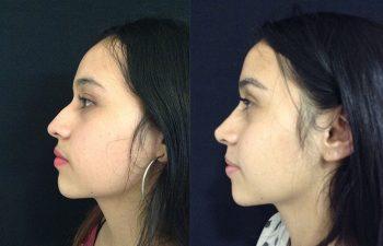 Rinoplastia mujer perfil izquierdo