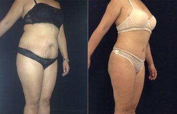 Abdominoplastia mujer perfil diagonal derecho