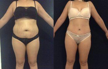 Abdominoplastia mujer perfil frontal