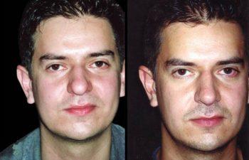 Proyección y definición de punta nasal. Resultado a los 12 meses.