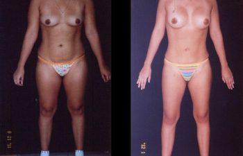 Aumento de Senos por detrás del músculo con implantes de Perfil natural + Liposucción de Abdomen espalda, cintura-cadera,piernas y brazos.