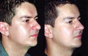 Vista lateral derecha, obsérvese lipo de papada. Resultados a los 12 meses.