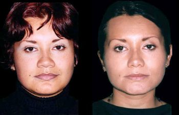 Aumento de dorso óseo y cartilaginoso. Aumento de punta nasal. Reducción de alas nasales. Resultados a los 2 años.