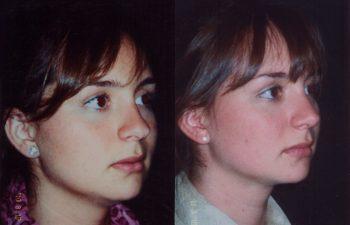 Tratamiento De Punta Nasal Globosa: Obsérvese Definición y proyección punta nasal.