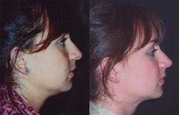 Obsérvese alineamiento del dorso nasal en su perfil izquierdo.