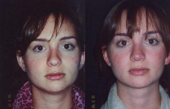 Obsérvese alineamiento del dorso nasal + definición de punta nasal