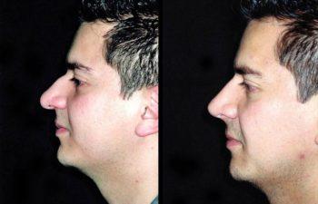 Vista de perfil izquierdo