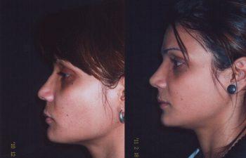 Aumento de dorso nasal + definición y proyección de punta nasal + acortamiento de labio