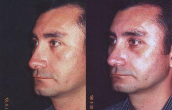 Tratamiento Para Rinoplastia Secundaria: Obsérvese dorso nasal derecho alineado.