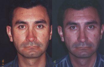 Corrección de dorso nasal torcido por cirugía anterior.
