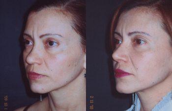 Rinoplastia de Aumento: Obsérvese aumento del dorso y definición de punta nasal.