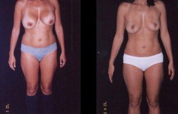 Retirada de implantes + Levantamiento de senos + Liposucción de cintura-cadera y abdomen.