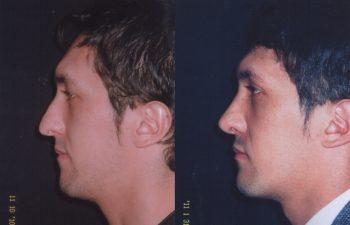 Obsérvese definición de punta nasal.