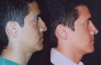 Tratamiento de nariz aguileña: Obsérvese dorso recto y proyección de la punta nasal.