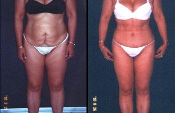 Paciente de 40 años. Se realizó Abdominoplastia + Lipolisis Vaser de cintura-cadera y desgrasado del abdomen.