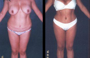 Paciente de 38 años. Se realizó Abdominoplastia por segunda vez (Se había realizado una abdominoplastia anterior en otro servicio) + lipolisis Vaser de cintura-cadera y desgrasado del abdomen.