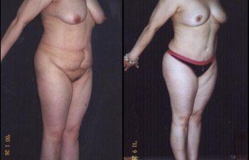 abdominoplastia-6-3