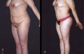 abdominoplastia-6-4_0