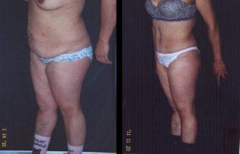 Paciente de 29 años. Se realizó Abdominoplastia + Lipolisis Vaser de cintura-cadera y desgrasado del abdomen.