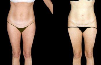 Abdominoplastia (tipo4) Corrección de flacidez muscular + Liposucción de cintura, obsérvese naturalidad del ombligo, resultados a los 8 meses.