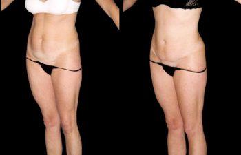 abdominoplastia-8-4