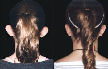 Otoplastia vista posterior - Resultado a los 3 meses