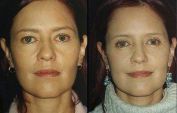 Blefaroplastia superior e inferior más Cantopexia. Resultado a los 4 meses. Obsérvese ojo menos redondo