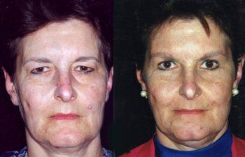 Blefaroplastia superior e inferior, más elevación de cejas. Resultado al mes.