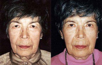Cirugía de párpado superior con disminución del campo visual en paciente mayor. Resultado a los 4 meses.