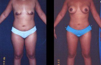 Aumento de senos + Liposucción General y levantamiento de Senos. Elevación de areolas SIN cicatriz con descenso del surco submamario Técnica de Rosales. Implante en posición retroglandular. Paciente de torso mediano. Senos copa B