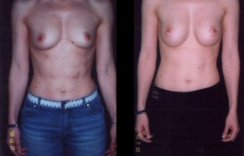 Aumento de Senos Simple. Implante en posición retroglandular sin descenso del surco submamario .Paciente de torso largo y estatura alta. Senos copa B