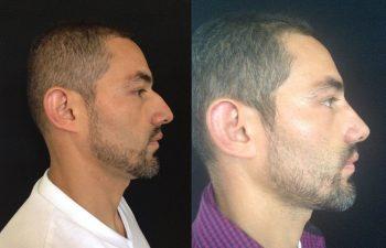Rinoplastia primaria Reducción de dorso nasal + Proyección de punta nasal + colocación de injertos separadores + Osteotomía.