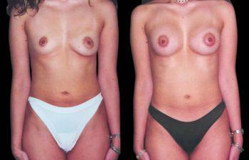 Solicitud paciente: corregir asimetría seno derecho, aumento moderado. Tronco: largo y delgado. Estatura alta. Procedimiento: Corrección de asimetría con prótesis de distinto tamaño.