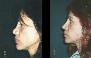 Vista perfil izquierdo