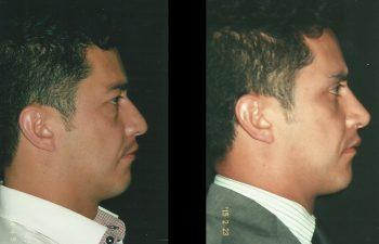 Vista perfil derecho