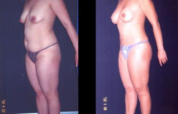 Abdominoplastia + Liposucción + Aumento de senos + Reducción de areola. Implante en posición retroglandular sin descenso del surco. Paciente de torso largo. Senos Copa B