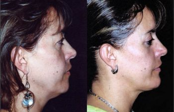 Vista perfil derecho. Obsérvese lip de papada y mentoplastia