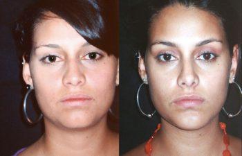 Rinoplastia y mentoplastia + liposucción de papada. Resultado al año.