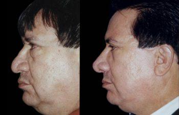 Vista de perfil izquierdo. Resultado a los 18 meses.