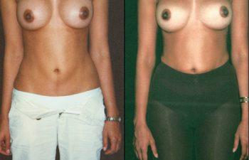 Corrección de mal posición y tamaño de implantes. Resultado a los 4 meses.