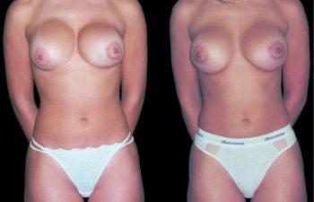 Mamoplastia secundaria. Solicitud Paciente: Reubicación del implante. Tronco: Mediano, espalda angosta, estatura mediana. Procedimineot: Reubicación del implante.