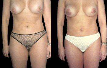 Lipoinyección supraumbilical para corrección de pliegue causado por liposucción anterior con otro cirujano. Obsérvese reubicación de prótesis mamaria