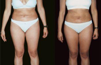 Corrección liposucción abdominal - Resultado a los 10 meses - Vista lateral
