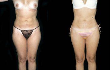 Corrección Liposucción secundaria en tronco y pierna.- Obsérvese menos grumos en la piel. Resultados a los 5 meses.