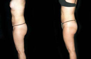 Vista lateral derecha. Menos grumos en la piel. Resultado a los 5 meses.