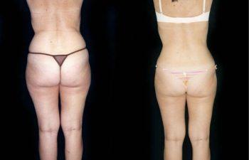 Obsérvese el contorno corporal más definido. Resultado a los 5 meses.