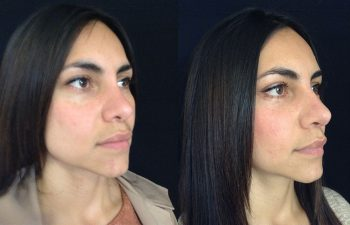 Rinoplastia Secundaria: Retirada de injerto en el radix + Aumento de dorso nasal + aumento, definición y alargamiento de punta nasal + colocación de malla dérmica en parpados inferiores