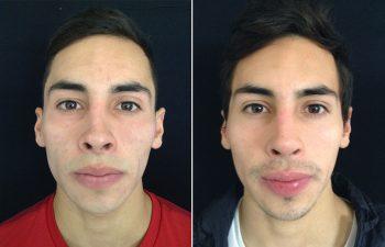 Rinoplastia Secundaria: Colocación de injertos separadores + retirada de injerto en poste + disminución de altura de punta nasal
