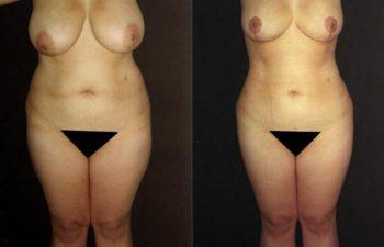 Liposucción corporal + Mamoplastia de reducción , cicatriz en ancla, reducción de 600 gramos por mama.
